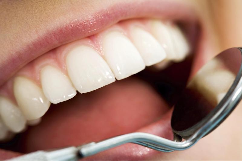 Кислотная эрозия зубов