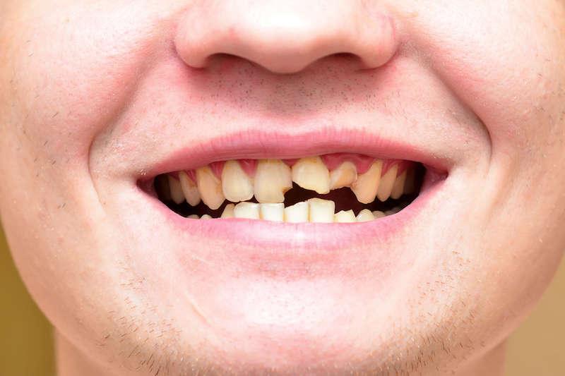 Почему крошатся зубы у взрослых? Что делать?