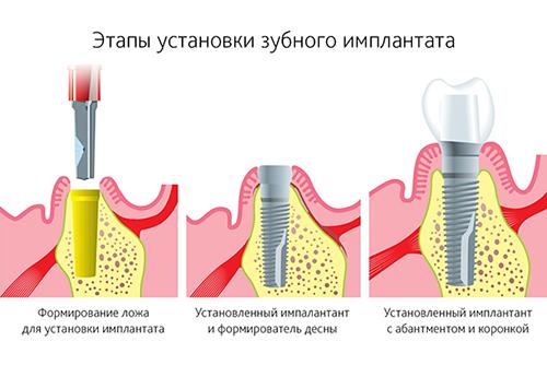 Этапы имплантации зубов и виды керамических коронок