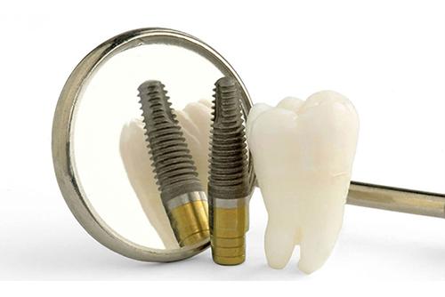 Преимущества полной имплантации зубов