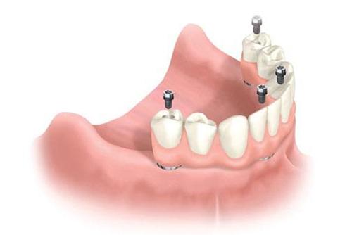 Имплантация нижних жевательных зубов